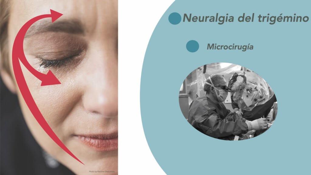 neuralgia del trigémino guipuzcoa