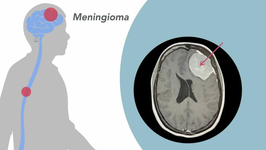 Meningioma Gipuzcoa